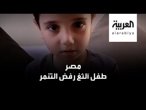 شاهد طفل مصري ألدغ يرد على المتنمرين بخفة دم